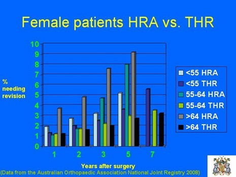 Graph of Female Patients with HRA vs. THR by age
