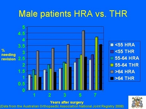 Graph of Male Patients with HRA vs. THR by age