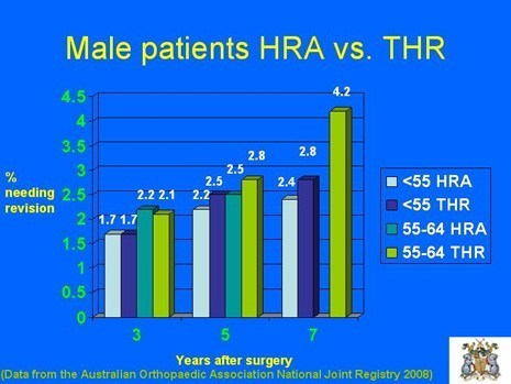 Graph of Male Patients with HRA vs. THR, at 3 to 7 years